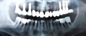 Dental x-rays of implant supported dental restorations