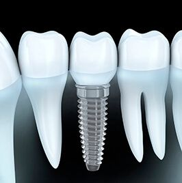 image of implant