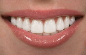 A closeup up a white smile.