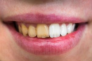 Before and after teeth whitening from dentist.